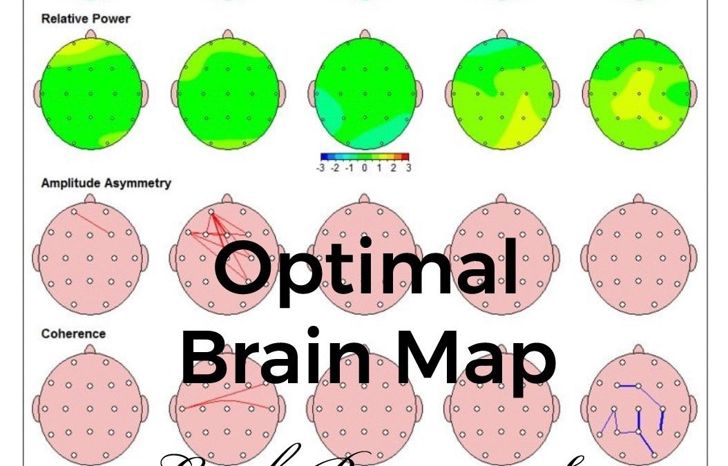 "What a ""Normal"" qEEG Brain Map Looks Like."